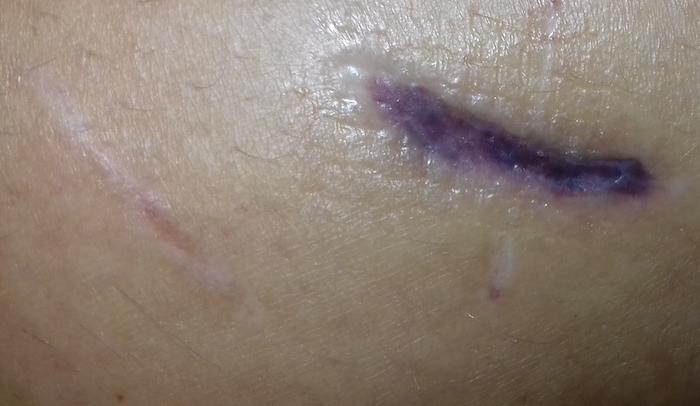 Comment prendre soin de sa cicatrice ?